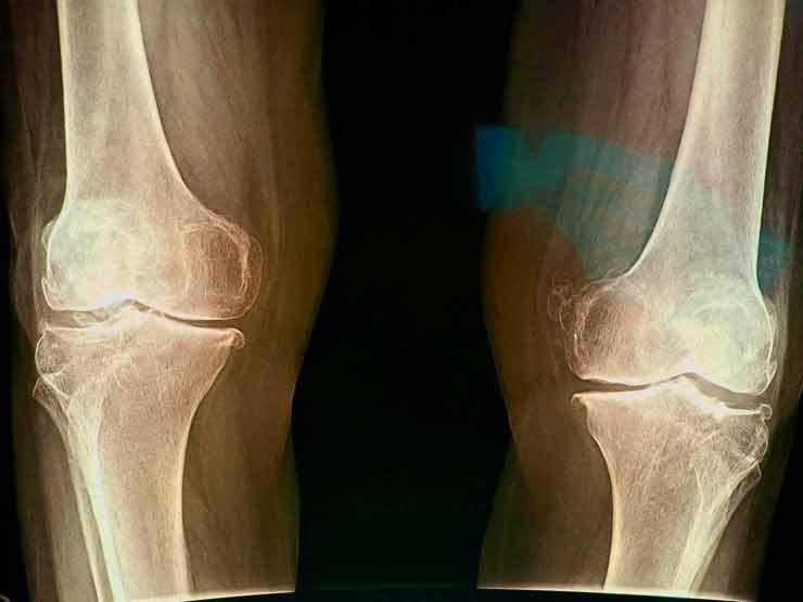 radiografía articulaciones y huesos